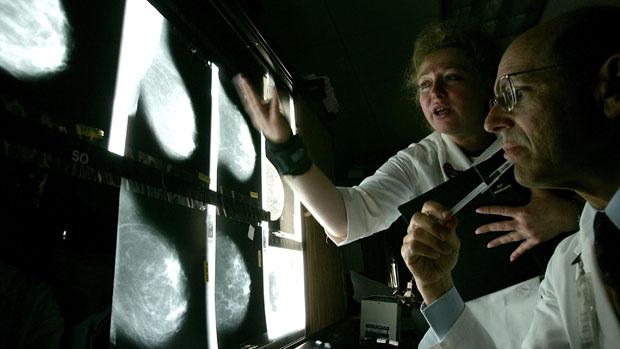 Coronavirus: por qué las muertes por cáncer pueden aumentar en una quinta parte